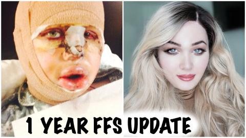 Facial Feminization Surgery 1 Year Post OP UPDATE