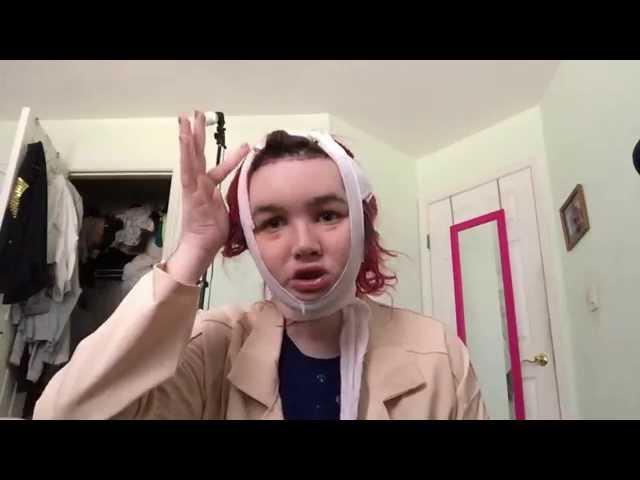 FFS Surgery Post OP Vlog Day #34: Sleeping all night with no Head Piece! | 2/13/15 | Raiden Quinn