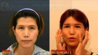 《謝明吉顎面整形中心》女性柔化手術(FFS) Facial Feminization Surgeries