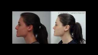 FFS Results - Resultados CFF:  Mayra Facial Feminisation / Feminización Facial De Mayra