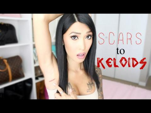 Breast Augmentation Scars Turns Into Keloids