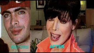 FFS- FACIAL FEMINIZATION SURGERY By Dr. Lazaro Cardenas