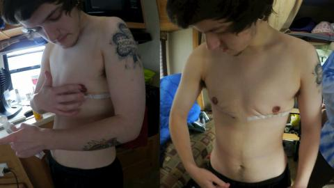 Taking His Shirt Off!! 1 Week Post Op Top Surgery (FTM) Cleaning Routine!