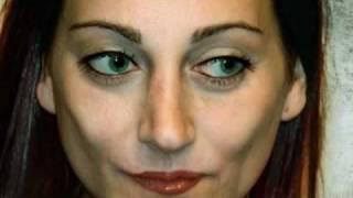 Facial Feminization Surgery ( FFS ) Before&After: Ema Sofia