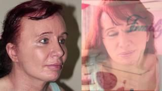 Facial Feminization And Rejuvenation ( Facelift) Ffs Surgery- Feminización Facial Y Rejuvenecimiento