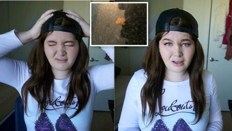 My First KIDNEY STONE!! - Story Time