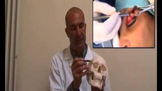 Femminilizzazione Dell'arcata Sopraccigliare - Facial Feminization Surgery - Chirurgia Transessuale