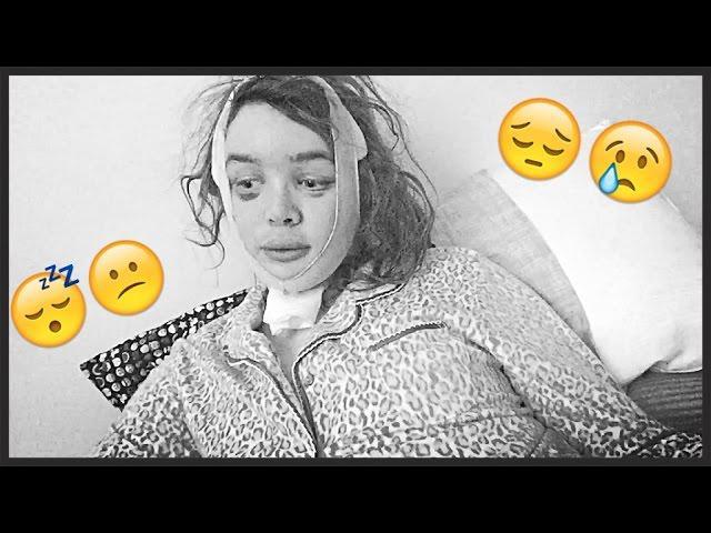 FFS Surgery Post OP Vlog Day #23: Recovering is an Emotional ROLLER COASTER  2/2/15   Raiden Quinn