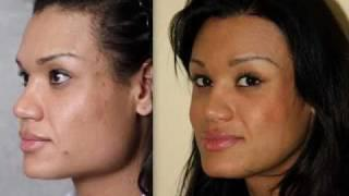 Facial Feminisation Surgery ( Ffs ):  Before&after