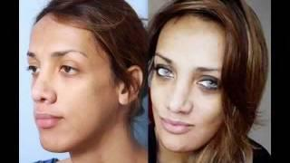 Before And After FFS - Antes Y Después De CFF: Candace