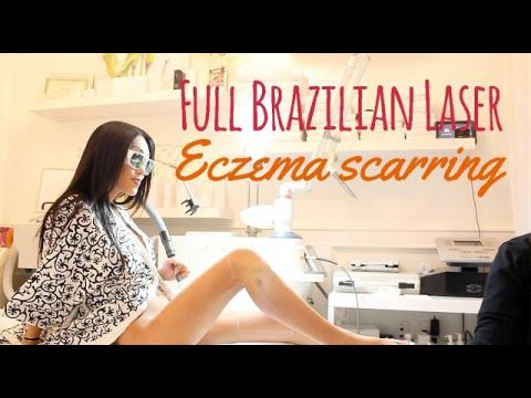 Brazilian Laser Hair Removal & Eczema Scar Reduction
