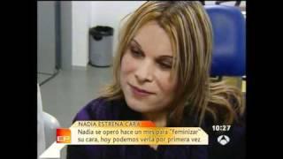Feminización Facial ( CFF ): Nadia - Post-op En Antena 3