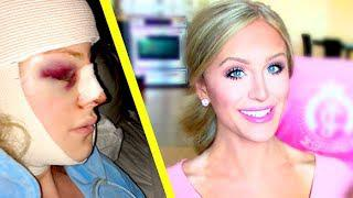 My Facial Plastic Surgery Story | Gigi
