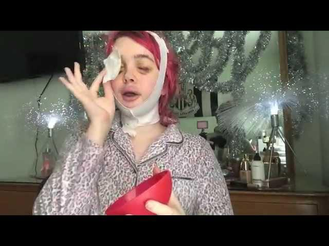 FFS Surgery Post OP Vlog Day #19: Face Products you NEED!  RL 1/29/15   Raiden Quinn